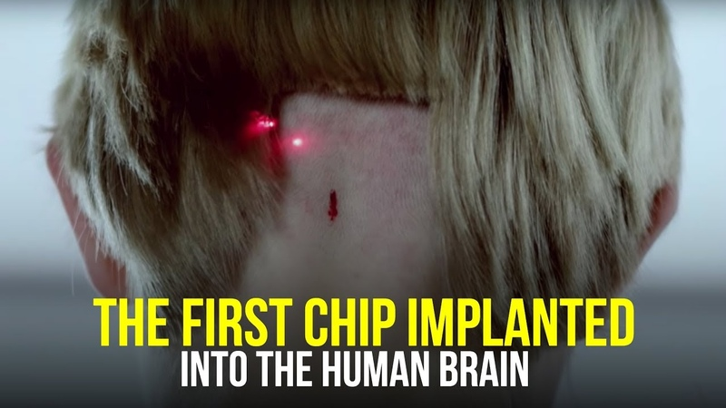 This Could Be a Tragedy For Humanity | The First Brain Chip Implant