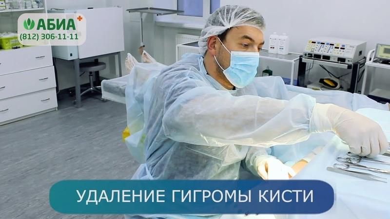 Удаление гигромы кисти в клинике АБИА
