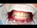 Periodontal debridement with mectron MULTPIEZO PRO touch