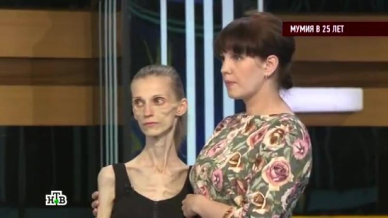 Говорим и показываем - Мумия в 25 лет (02.06.2015) Тв-Шоу Анорексия