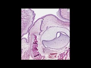 Развитие и гистологическое строение зуба Odontogenesis Tooth Норма. Гистология.