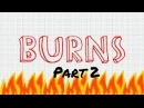 A Nursing Student's Guide to Burns Part 2