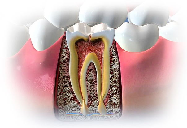 granuloma dentale senza dolore