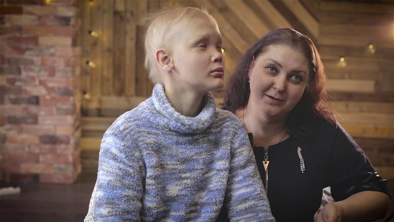 Кирилл и его мама Оксана о жизни с редкими заболеванием Эктодермальной ангидротической дисплазией