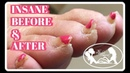 Pedicure Tutorial Elderly Thick Toenails Growing Up Transformation