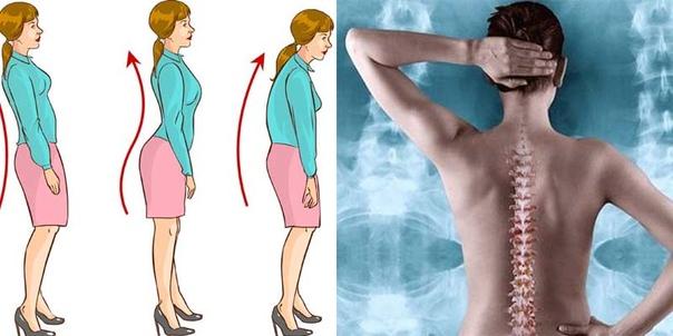 6 СОВЕТОВ, КАК СДЕЛАТЬ ОСАНКУ ИДЕАЛЬНОЙ Использование ортопедических конструкций для осанки Существуют корсеты, которые осторожно отводят назад плечи, чтобы улучшить положение сидящего и