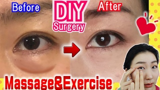 How to Remove Under Eye Bags👁️ Naturally in 7 Days Massage & Exercises🙋