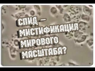 Вся ПРАВДА про обследование на ВИЧ! Рассказывает Владимир Агеев - зав. кафедрой пат. анатомии